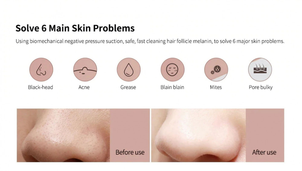 جهاز تنظيف الوجه