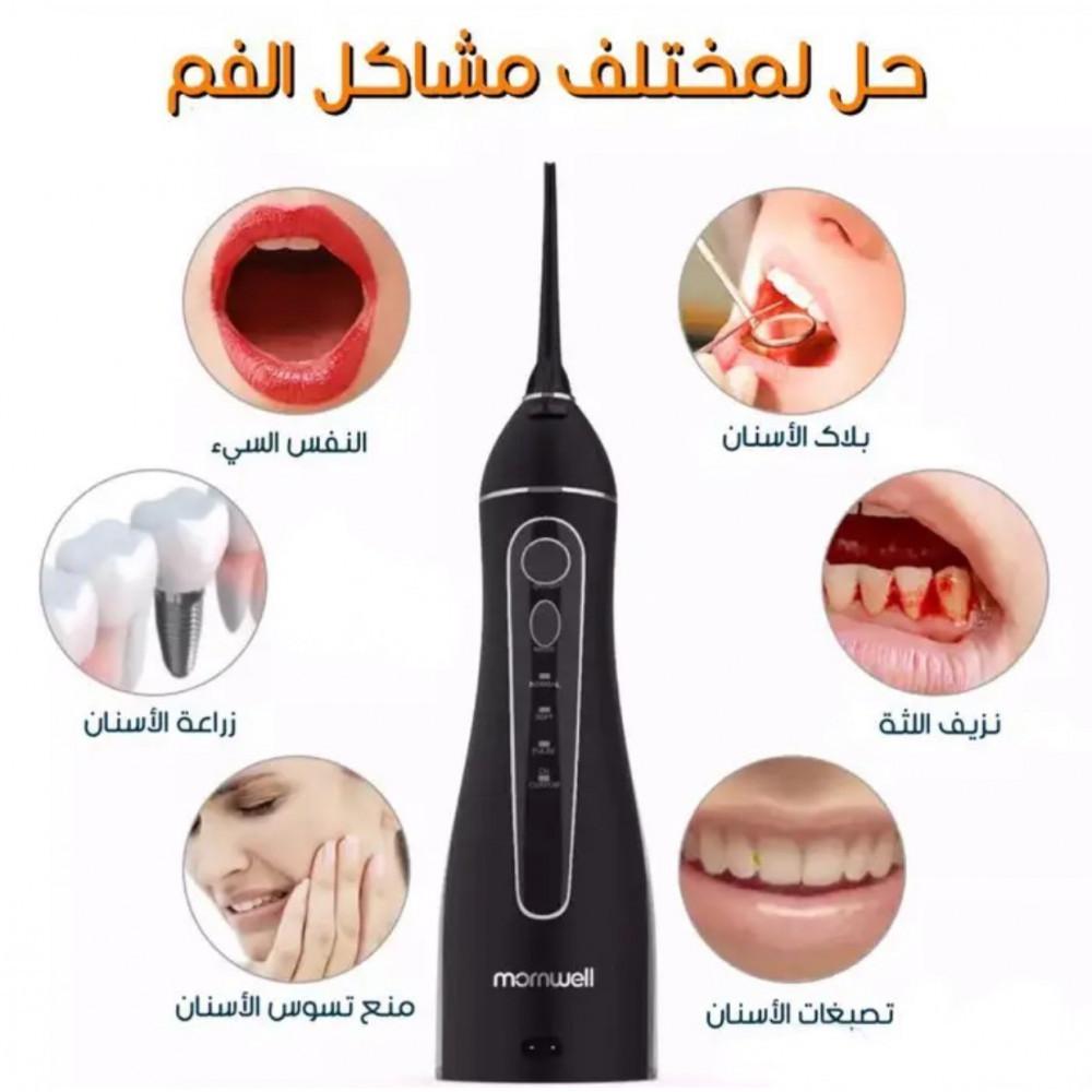 حل رائحة الفم