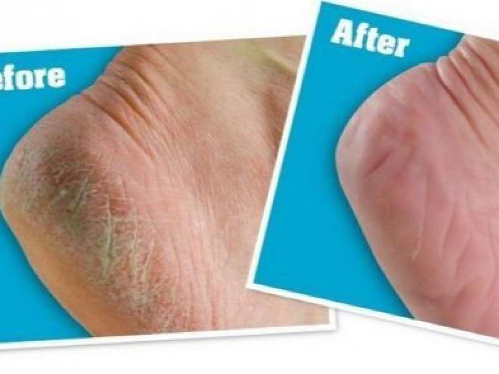 افضل كريم لتشققات القدمين افضل حل كريم القدمين الازرق افضل علاج للقدم