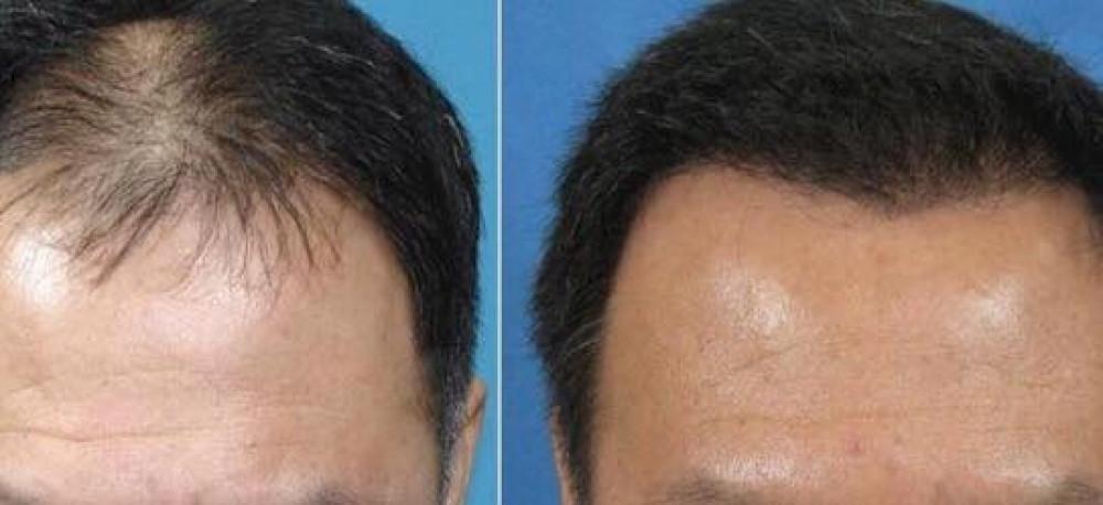 امبولات منع تساقط الشعر الايطالية من ديكسون 12 امبولة 10مل